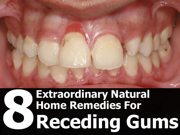 Home Remedies For Gum Recession Pain