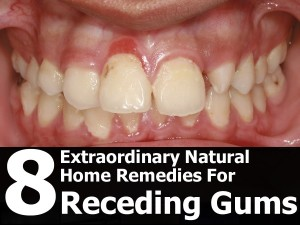 natural-remedies-for-receding-gums-600x450