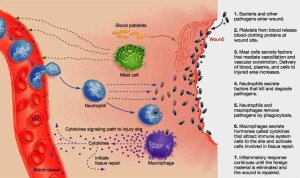 acute-inflammation-injury-real-cause-heart-disease-chronic-inflammation